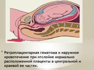 Боли при отслойке плаценты на поздних сроках