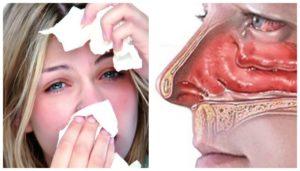 Как снять отек носа при насморке у беременных