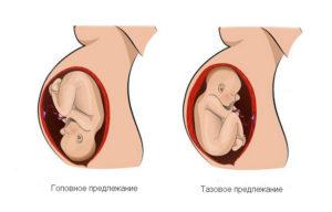 Тазовое предлежание плода на 25 неделе беременности