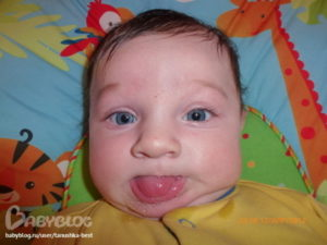 У ребенка 3 года текут слюни