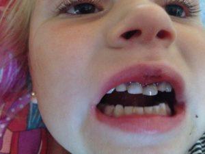 Ребенок порвал губу что делать