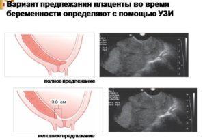 Плацента при беременности утолщена