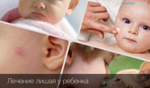 Сколько лечится лишай у детей