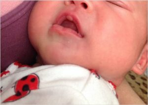 Пузырь на губе у новорожденного