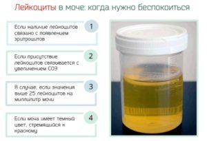 В моче при беременности повышены лейкоциты и эритроциты