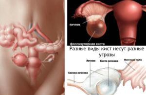 Киста яичника в менопаузе симптомы и лечение женщины