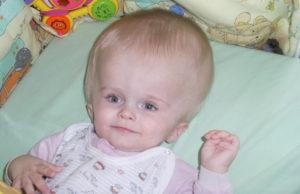 Голова у младенца большая голова