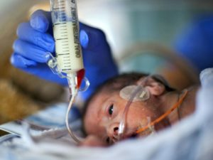 Кормление через зонд новорожденных