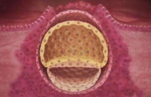 Прикрепление эмбриона к матке на какой день симптомы