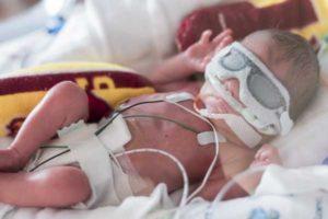 Может ли выжить ребенок на 26 неделе беременности