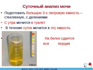 Как собрать суточную мочу на белок при беременности