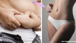 Сильные газы после родов