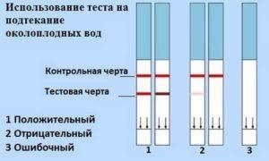 Причины подтекания околоплодных вод в третьем триместре