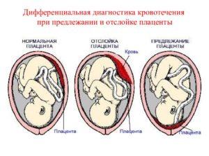 Бандаж при предлежании плаценты