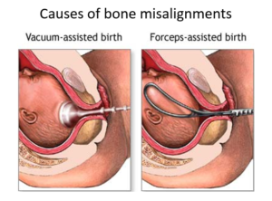 Роды после пессария форум