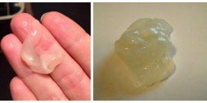 Как отходят воды у беременных перед родами форум