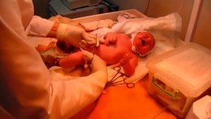 Пуповина как отделяется после родов