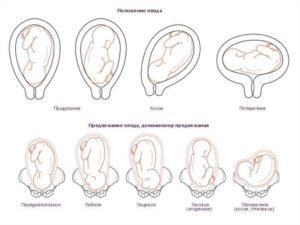 Неправильное положение плода при беременности причины и последствия