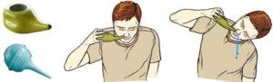 Можно ли физраствором промывать нос при беременности