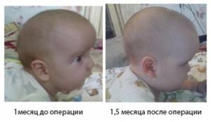 У ребенка неправильно срослись кости черепа