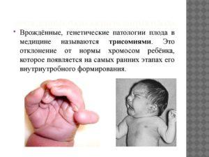 Патологии плода при беременности