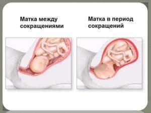 Как лучше лежать при тонусе матки при беременности
