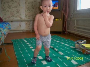 Ребенок 3 года большой живот