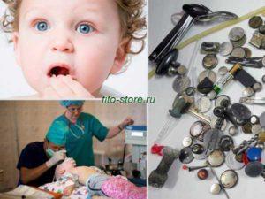 Симптомы ребенок что то проглотил
