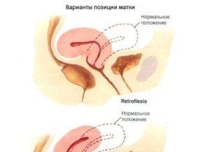 Ретрофлексия матки при беременности