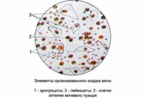 Эритроциты и лейкоциты в моче при беременности форум