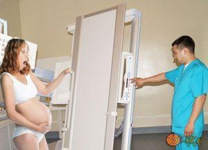 Как влияет рентген на беременность на ранних сроках