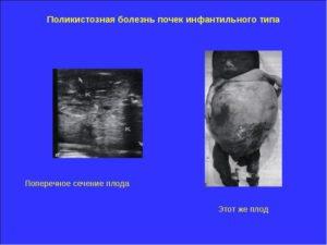 Поликистоз почек у плода во время беременности