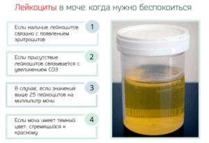 При беременности в моче лейкоциты и бактерии в