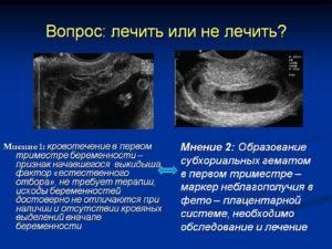 Гематома в стадии организации при беременности что это