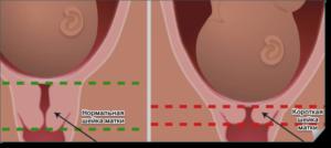 Шейка матки короткая при беременности 21 неделя беременности