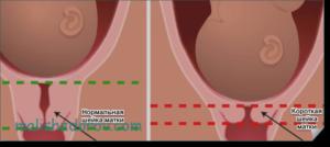 Шейка матки 36 мм на 36 неделе беременности