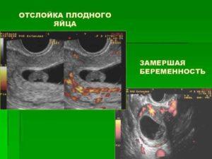 Деформация плодного яйца на ранних сроках беременности последствия