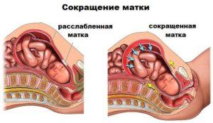 Когда матка в тонусе при беременности что делать