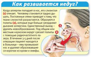 Закладывает нос в положении лежа при беременности