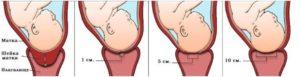Раскрытие шейки матки на 4 см когда рожать
