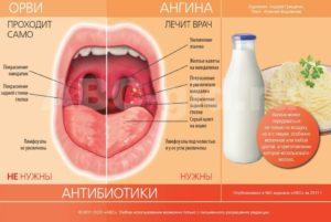 Болит горло 38 неделя беременности чем лечить