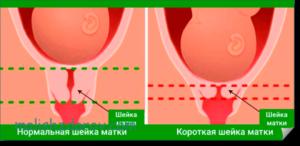 Что значит короткая шейка матки