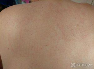 Аллергия на кондиционер у ребенка