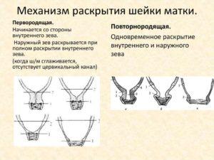 Что способствует раскрытию шейки матки
