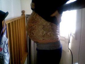 Беременность 20 недель двойней