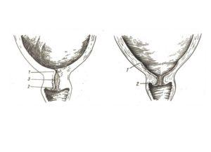 Раскрытие шейки матки на 3 пальца когда роды