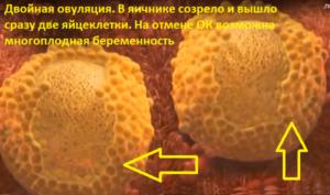 Двойная овуляция в одном яичнике