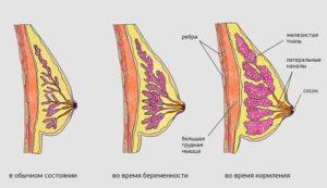 Сколько при беременности болит грудь