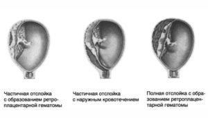 Утрожестан при отслойке плаценты на ранних сроках беременности