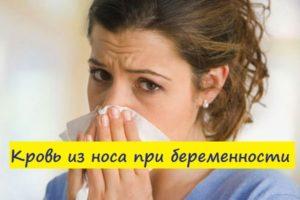 Кровь из носа может ли быть признаком беременности